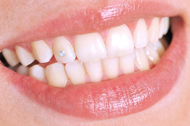 Tooth Jewelry - zahncity.ch